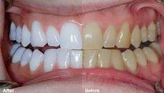 Le mélange de ces deux ingrédients vous aidera à retrouver la blancheur naturelle de vos dents. Découvrez-les !