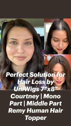 Hair Toppers, Middle Parts, Remy Human Hair, Hair Loss, Women, Losing Hair, Hair Falling Out, Fall Hair, Woman