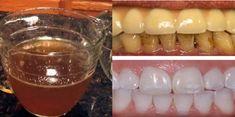 Deze eenvoudige oplossing verwijdert beter tandplak en -vlekken, dan producten die je in de winkel kunt kopen