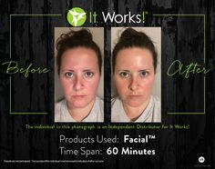 Gorgeous, glowing skin... http://michelleburnette.myitworks.com/