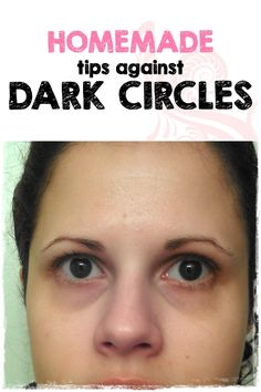 1000+ images about Dark Circles under eyes on Pinterest ...