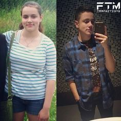 "1,163 Likes, 6 Comments - FTM Transitions (@ftmtransitions) on Instagram: ""Showcasing @vodkanpoptarts is pre-T on the left, and 16 years old. The right is 8 months on…"""