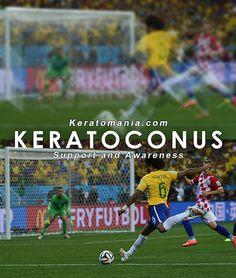 #WorldCup Keratoconus Vision Simulation. Brazil and Croatia match at the 2014 FIFA World Cup, Arena Corinthians, Sao Paulo. http://www.keratomania.com/keratoconus-vision-simulation.html