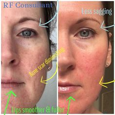 I HAVE to share these incredible  results from one of my business partners Pam. She has been using our #REDedefine (anti-age) #rodanandfields products for only 5 weeks.  You can visibly see the changes in her skin from the smoother texture a scar softening and no more sagging eye lid.  She used our Redefine Anti-age regimen AMP MD Roller and our Mulit-Function Eye Cream.  If you are ready to get these kind of results contact me.  LET'S GET YOU THE BEST SKIN IF YOUR LIFE…