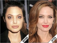 You will be surprised by some of the celebs that have had nose jobs. Angelina Jolie Nose Job, Celebs Without Makeup, Celebrity Plastic Surgery, Contour Makeup, Contouring, Rhinoplasty, Yesterday And Today, Hollywood Celebrities, Famous Faces
