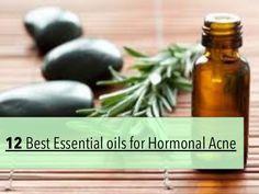 12 Best Essential Oils for Hormonal Acne Treatment