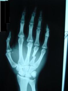 How Is A Broken Hand Treated