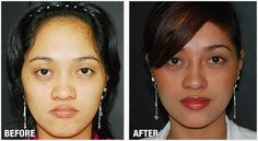 Filipino Before & After Rhinoplasty Cosmetic Surgery by Dr.Raynald Torres of Enhancements Cosmetic Surgery