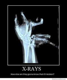 X-Ray's. How else are you going to know it's Broken?