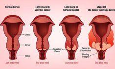 #ΓΥΝΑΙΚΑ #ΚΑΡΚΙΝΟΣ #ΥΓΕΙΑ Καρκίνος του τραχήλου της μήτρας: 6 ύπουλα σημάδια που πρέπει να γνωρίζετε