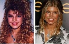 Fergie Plastic Surgery Before and After | Celeb Surgery