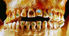 2,500 years ago the Mayans already had an advanced understanding of teeth. Dentists used a primitive drill to decorate teeth. They would have parts of the tooth cut out or shaped to make it look more interesting. Their most extreme modification was the bejeweling of teeth. Small holes made in their teeth were fitted with gemstones. Researchers believe these finds show the Mayans were very skilled at dental work, as they could fit these jewels into the teeth without breaking them.