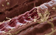 MUSCLES - medicine- scientific photopraphy- scanning electron microscopy - inner organs, bones, skin..