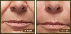 Dermal Fillers (Juvederm): Cheek (nasolabial) Folds