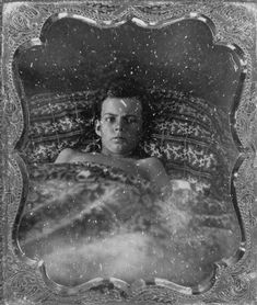 A boy from an Irish immigrant family, the Harrises, shown suffering from yellow fever in New Orleans in Courtesy Louisiana State Museum. Mississippi River Delta, Yellow Fever, Medical Facts, Daguerreotype, Medical History, Life Is Hard, Memento Mori, Natural Disasters