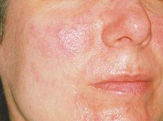 Symptoms generally consist of redness, irritation or burning of the eyes and the above-mentioned invisible eyelash. Treatment for patients suffering from this condition can be treated with warm compresses, artificial tears and metronidazole gel, an antibiotic specifically applied to the eyelids. Oral antibiotics may also be prescribed. There is some credence given to the idea that a person's diet may come into... FULL ARTICLE…