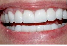 true?...never buy white strips again!: dip q-tip in hydrogen peroxide (the key ingredient in whitestrips) and apply to surface of teeth for 30 sec before brushing teeth) once a day for a few days. Teeth will look whiter in 2 days.