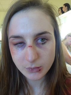 swelling under eye - Google Search | Silicon sfx scars and ...