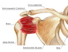 Frozen Shoulder http://www.performchiro.com/your-symptoms/#tab-1-1-frozen-shoulder