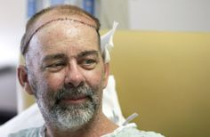 Texas doctors complete first-ever skull transplant