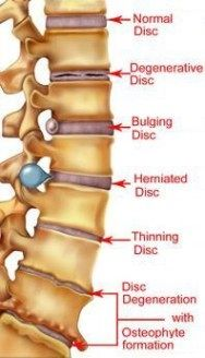 Remedies To Relief Pain herniated disk supplements to help speed recovery and repair-glucosamine with chondroiton, flax seed oil, calcium and phosphorus with vit. D, bee pollen Human Body Anatomy, Human Anatomy And Physiology, Muscle Anatomy, Degenerative Disc Disease, Spine Health, Medical Anatomy, Medical Information, Sciatica, Sciatic Nerve