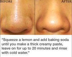 Exprime un limón y agrega bicarbonato de sodio hasta que se haga una pasta espesa y cremosa, dejar actuar durante unos 20 minutos y enjuagar con agua fría.