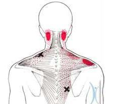 OREGON: Trigger point injections directly interrupt this cycle, offering immediate and long term relief.