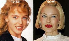Kylie Minogue Plastic Surgery - Plastic surgery gone wrong before and after