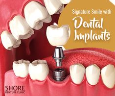 Dental implant are very similar to natural teeth and an lasting solution for missing teeth. Get comfortable dental implant surgery at VIP Dental implant in Houston where expert dentist performs best suitable teeth replacement option. Best Dental Implants, Affordable Dental Implants, Teeth Implants, Smile Dental, Dental Care, Dental Hygienist, Dental Assistant, Tooth Replacement, Dental Bridge