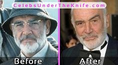 Sean Connery Plastic Surgery Photos Before After #celebsundertheknife #celebs #celebrity #plasticsurgery #celebritysurgery
