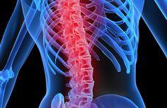 Osteoporosis y actividad física http://blgs.co/z9qvjO