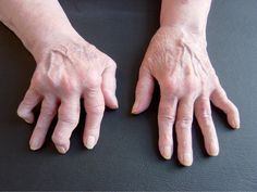 Amazing Secret Discovered by Middle-Aged Construction Worker Releases Healing Energy Through The Palm of His Hands. Cures Diseases and Ailments Just By Touching Them. And Even Heals People Over Vast Distances. How To Eat Ginger, Health And Beauty, Health And Wellness, Bow Legged Correction, Yoga Nidra, Fat Loss Diet, Home Remedies, Natural Remedies, Back Pain