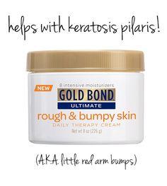 Cream for keratosis pilaris