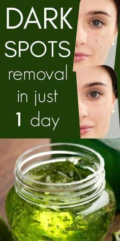 Excellent beauty hacks tips are readily available on our web pages. Take a look and you wont be sorry you did. #beautyhacks