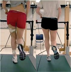 Figure 1: Female runner with patello- femoral pain syndrome demonstrating a large reduction in medial collapse me- chanics from pre-mirror gait retraining (left) to post-retraining (right). Note the increase in distance between the knees and reduction in contralateral pelvic drop.