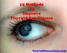 Thyroid Eye Disease is an inflammatory condition which affects the orbital contents including the extraocular muscles and orbital fat. It is almost always associated with Graves' disease (GD)…