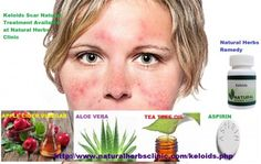 A choice to Keloids Herbal Remedies and support reduction their arrival is to apply tea tree oil to the scar. Some individuals choose to use tea tree oil soap on the part two times a day.... http://naturalherbsclinic.classtell.com/keloidscars/