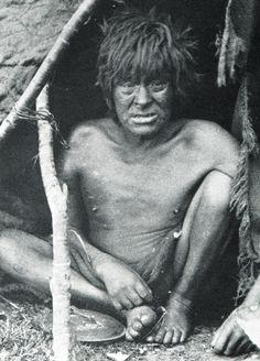 """Hombre alacalufe enfermo. Fotografía de Martín Gusinde. 1920 aprox. En: """"Los indios de Tierra del Fuego: los Halakwulup"""""""". Martín Gusinde. Editorial C.A.E.A. 1986."""