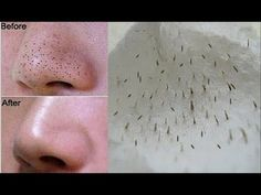 How To Remove Tons Of Blackheads & Whiteheads Instantly! Home Remedies - YouTube