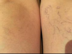 Can your wrinkle cream do this? This is a good example of results one can expect based on the clinical trial that showed 55% increase in blood flow circulation after one hour of application. 5 weeks RENU 28 applied to one leg. #ASEA #Renu28 #newhealth4u  www.newhealth4u.net