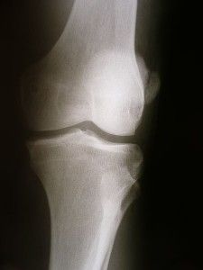 Knees popping? Here's when to worry...