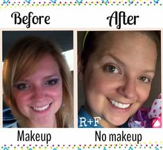 When I found R+F I wasn't expecting to find a solution to my Rosacea, dry skin and sun damage. I knew I would achieve great things with my skin and my main goal was to age backwards but truly had no idea that it would not only heal my scars from previous breakouts but extinguish the problem completely. I've been using REDEFINE regimen, AMP MD occasionally and multifunction eye cream for about 4 months. (Nov15-Mar16)-Brittany  Http://mpineda.myrandf.com