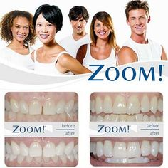 ™ Whitening Do you want to Zoom!™ in one hour? The Zoom! In-Office Whitening System is a revolutionary tooth whitening procedure. It's safe effective and fast, very fast. In just over an hour, your teeth will be dramatically whiter. Zoom Teeth Whitening, Teeth Whitening Procedure, Dental Hygiene, Dental Care, Dental Group, Dental Logo, Dress Hairstyles, Cosmetic Dentistry, Revolutionaries