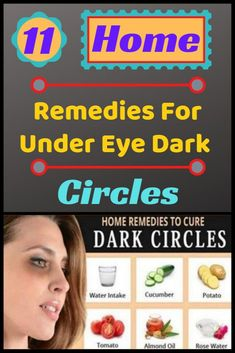 If you too are affected by dark circles, then this is the perfect article for you, since this article provides a list of the top 11 home remedies for dark circles.Some of the best remedies for dark circles include. Dark Circle Remedies, Rose Water, Dark Circles, Home Remedies, Healthy Life, Life Hacks, The Cure, Health Fitness, Funny Memes