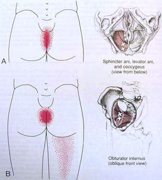 Levator anal syndrome