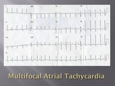 Great website to help learn how to read ECGs in a clinical setting