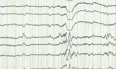 A multicenter study led by the University of Alabama at Birmingham has found a biomarker identified via electroencephalography, or EEG, that is 100 percent predictive for seizures in infants with tuberous sclerosis complex. Epilepsy Seizure, Epilepsy Awareness, Tuberous Sclerosis, States Of Consciousness, Psychic Development, Brain Waves, Seizures, Autism Spectrum Disorder, Brain Activities