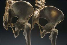 [Left] Male pelvis.  [Right] Female pelvis.  Image courtesy: Smithsonian…