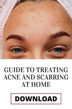 If you�re like me and suffer from adult acne and/or post acne scarring this guide is for you! What if I told you that you can start treating your acne and lighten your acne scarring at home? Acne Treatment At Home, Cystic Acne Treatment, Homemade Acne Treatment, Acne Treatments, Clear Skin Routine, Cystic Acne Remedies, Clear Skin Diet, Greasy Skin, How To Treat Acne