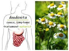 DUODENITA – cauze, simptome și tratament naturist Good To Know, Dandelion, Flowers, Plants, Dandelions, Plant, Taraxacum Officinale, Royal Icing Flowers, Flower